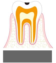 エナメル室内の虫歯