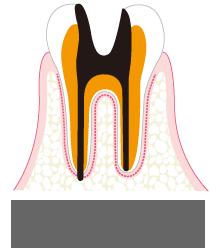 歯質が失われた虫歯